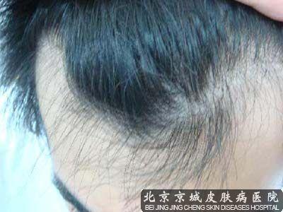 鬼剃头是什么原因_头上出现斑秃是什么原因 - 原因 - 脱发 - 北京京城皮肤医院_北京 ...